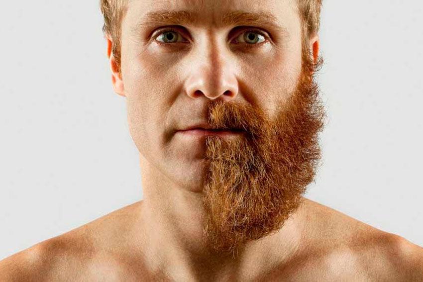 Implante de Barba: o que é, onde fazer e como?